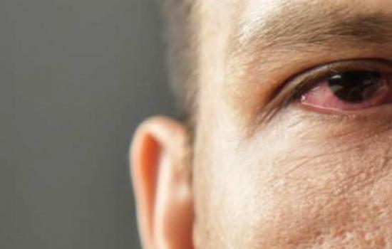 Impresionante: extraen 20 gusanos vivos del ojo de un hombre